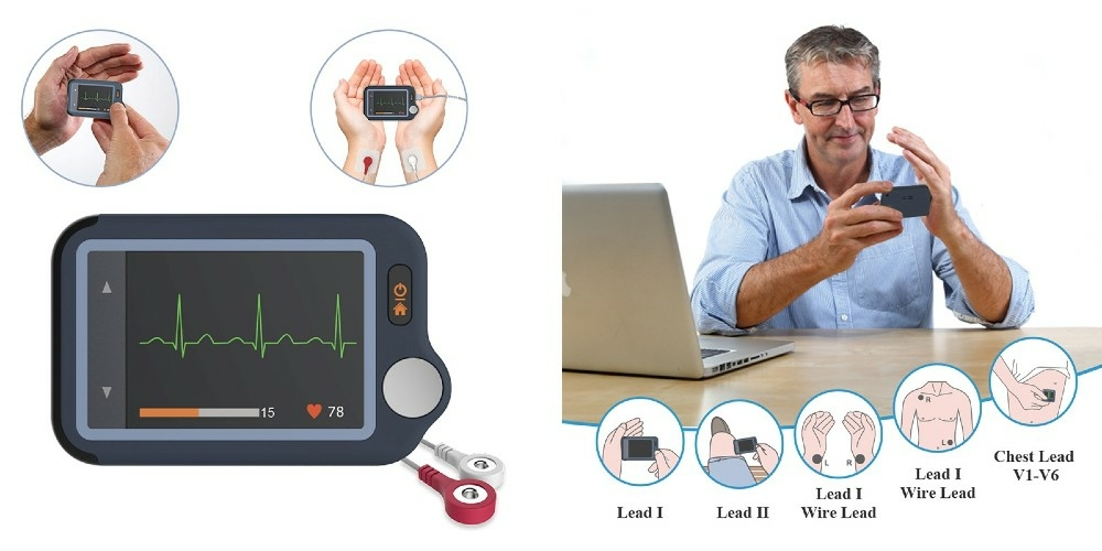 Viatom készülékek – Szemmel tartják a legfontosabb értékeket - Smartmedical